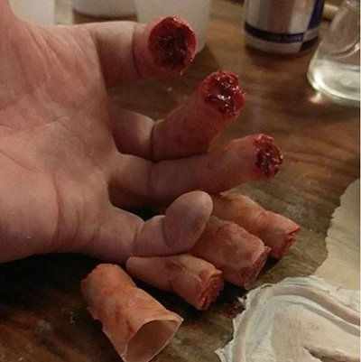 OSIME Moulage amputation fingers